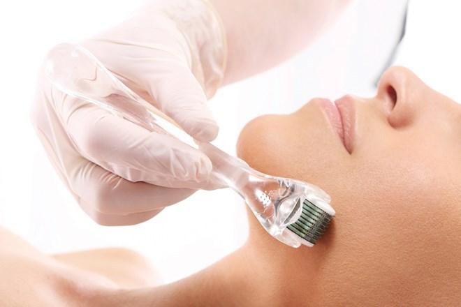 PRP có thật sự hiệu quả trong điều trị sẹo rỗ?
